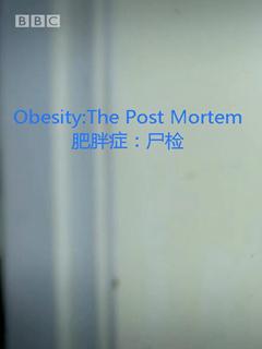 肥胖症:尸检